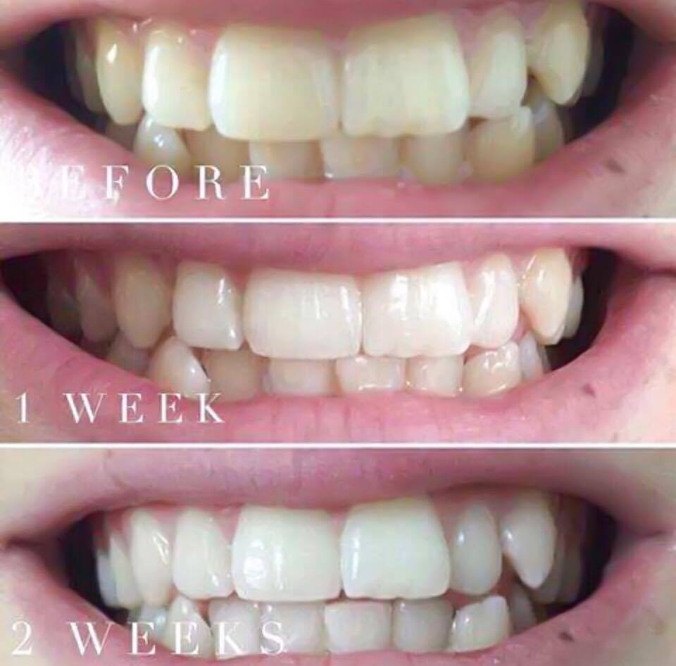 ap24 tandkräm test